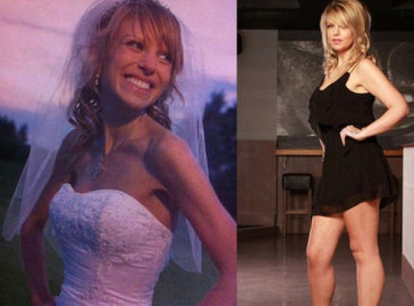 novia-anorexia