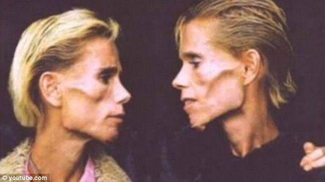 gemelas-anorexica2