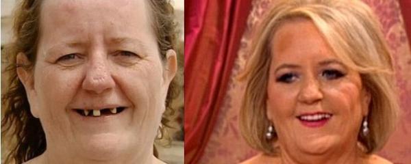 Fotos: Abuela sin dientes se transforma en rubia hot