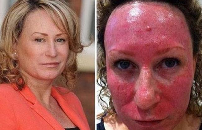 Foto: Así le quedó la cara luego de un tratamiento de belleza
