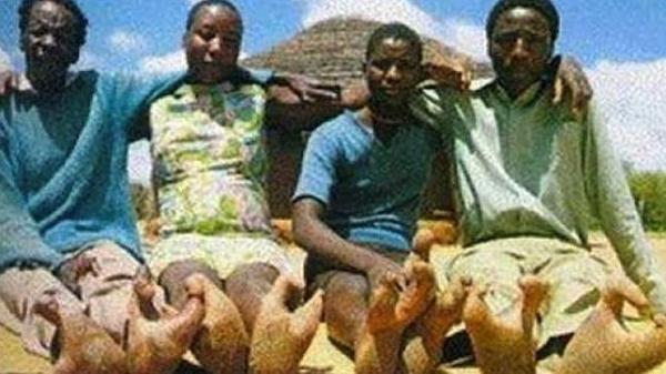 Extraño fenómeno: Habitantes de África tienen 'pies de avestruz' - Fotos