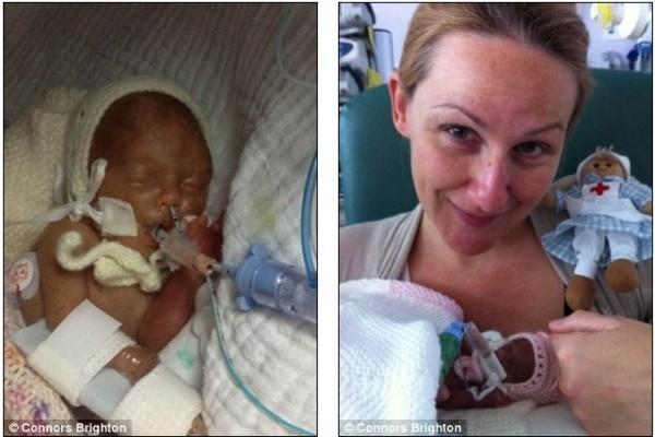 Fotos: Unas tijeras le salvaron la vida a bebé prematura