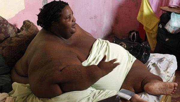 No pudo dejar de comer y murió de sobrepeso