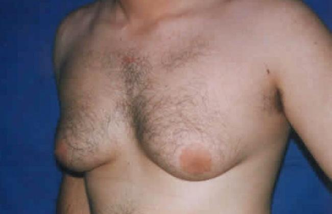 Militares padecen rara enfermedad que le hace crecer los pechos