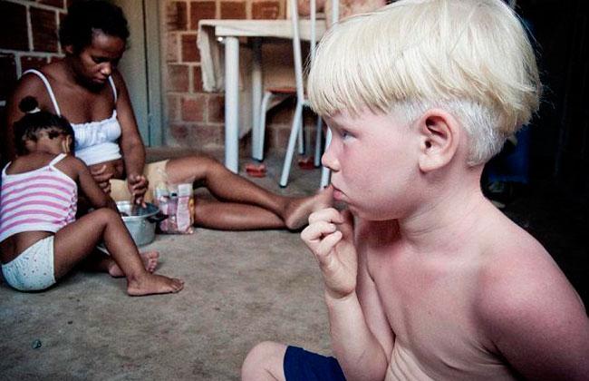 Cortan la mano a niño albino para hacer amuleto