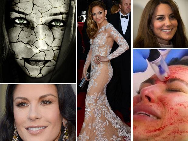 Tratamientos de belleza más extremos de las famosas