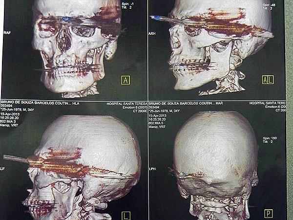 Se incrustó un arpón en el cráneo y sobrevivió