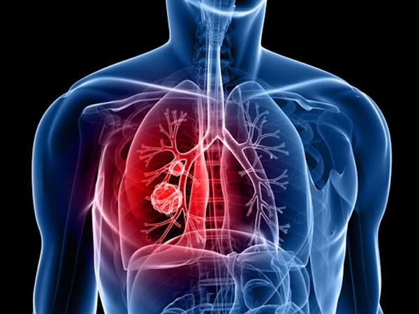 Vacuna argentina contra el cáncer de pulmón