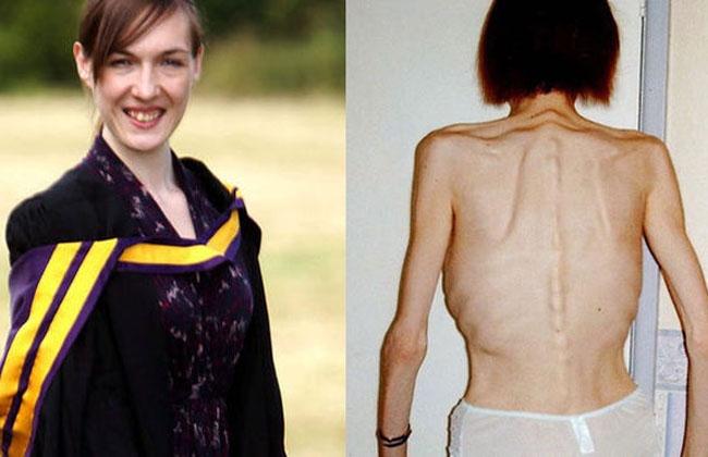 Anoréxica superó la enfermedad ingresando a la universidad